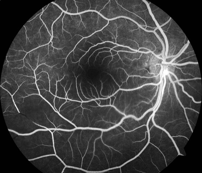 Branch Retinal Artery Occlusion FFA - Retina Image Bank