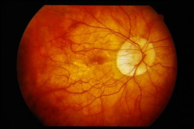 peripapillary atrophy with high myopia retina image bank