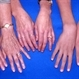 Hands of 3 generations of a Marfan's family