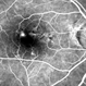 Retinal Angiomatous Proliferation in Age-Related Macular Degeneration with Subretinal Neovascularization