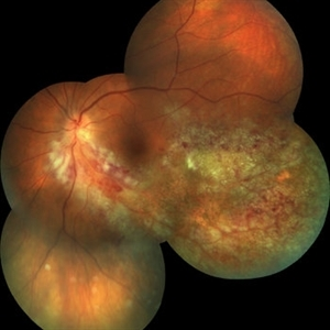CMV Retinitis Before Treatment