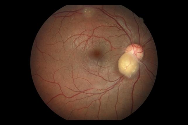 Astrocytoma Retina Image Bank
