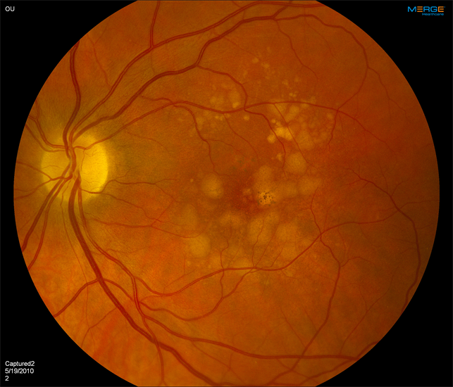 macular dystrophy retina - photo #49