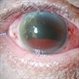 Silicone Oil In Anterior Chamber With Hyphema