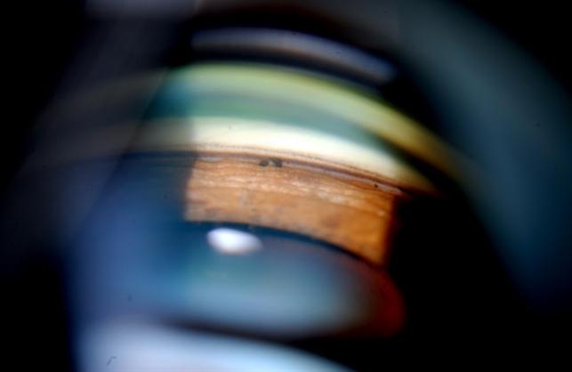 Gonioscopy Scattered Peripheral Anterior Synechiae Retina Image Bank