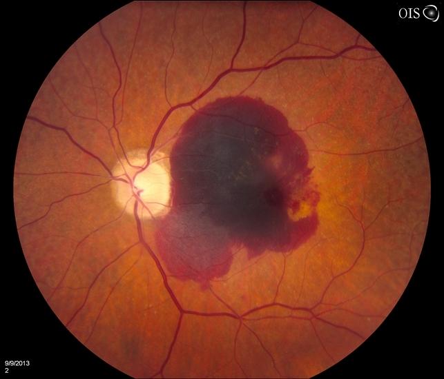 brownin retina átlátszatlansága a szemészetben milyen romlik a látás a számítógépen