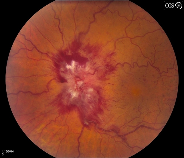 Central Retinal Vein Occlusion - Retina Image Bank