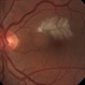 BRAO d/t cat scratch disease - LE fundus photograph