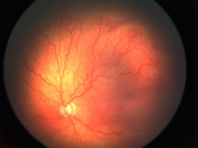 Retinopathy Of Prematurity In Zone 1 Retina Image Bank