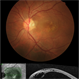 Optic Pit Maculopathy