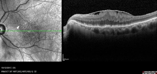 Epiretinal Membrane (Macular Pucker) - Retina Image Bank