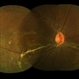 Spontaneously Attached Retina