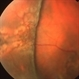 Bullous Retinoschisis status post Scleral Buckle