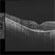 OCT of Retinitis Pigmentosa With CME