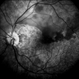 Branch Retinal Artery Occlusion With Calcium Embolus at the Disc - Fundus  Fluorescence Angiogram (FA)