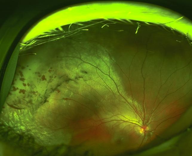 Commotio Retinae Retina Image Bank