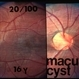 Optic Pit With Subretinal Fluid and Macular Cyst