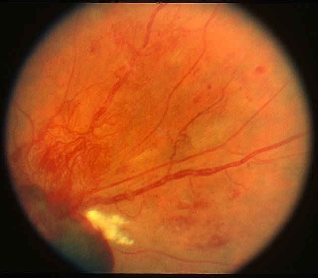 Retinal Neovascularization Retina Image Bank