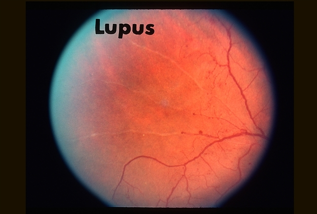 Lupus Vasculitis - Retina Image Bank