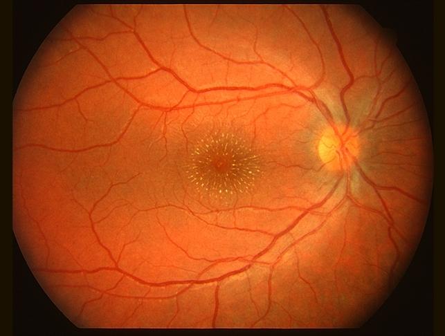 how to create retina images