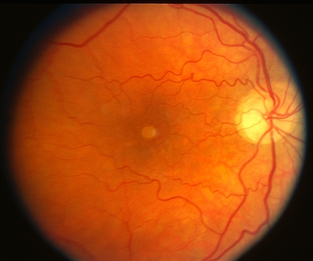 macular dystrophy retina - photo #8