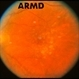 Dry Age-Related Macular Degeneration (AMD)