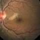 Branch Retinal Artery Occlusion
