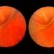 Acute Retinal Detachment