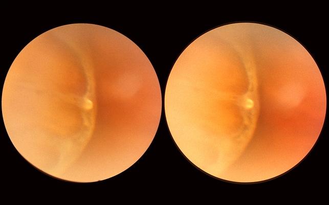Yellow Globular Lesion - Retina Image Bank
