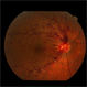 Central Retinal Artery Occlusion: Case 1