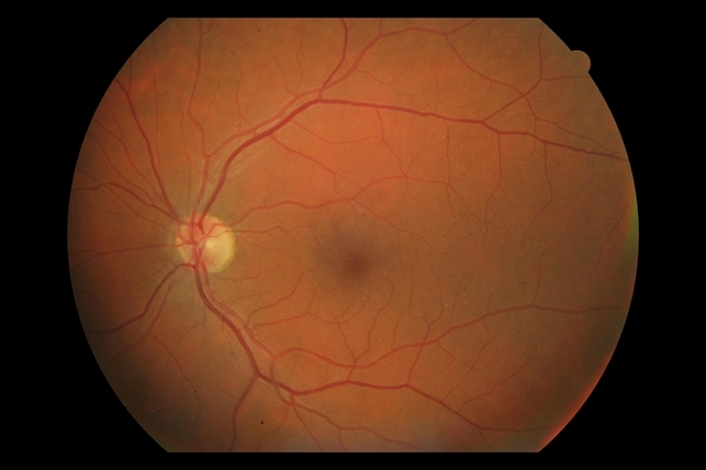 Example Of Areds Category 1 Small Drusen But Not Considered Amd Retina Image Bank