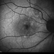 Polypoidal Choroidal Vasculopathy: Case 1 - Image 2 of 7