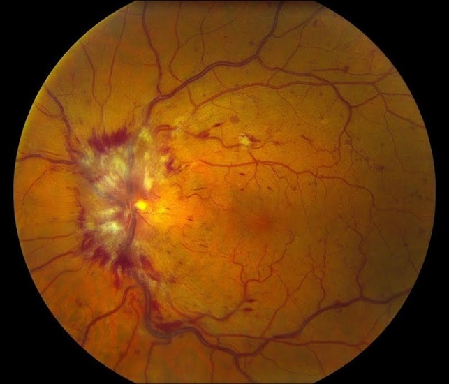 Central Retinal Vein Occlusion 1 - Retina Image Bank