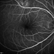 Unilateral Acute Idiopathic Maculopathy - Fluorescein Angiography (1)