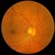 Combined Hamartoma of the Retinal Pigment Epithelium Case 2