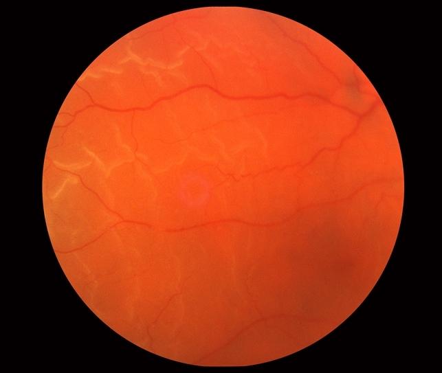 Rhegmatogenous Retinal Detachment - Retina Image Bank