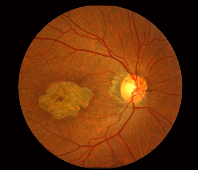 macular dystrophy retina - photo #9