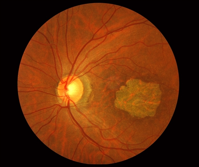 macular dystrophy retina - photo #3
