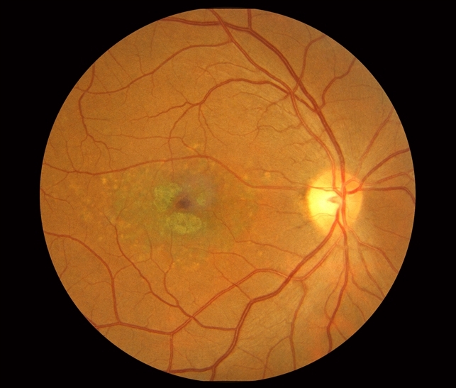 macular dystrophy retina - photo #4