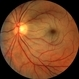 Central Retinal Artery Occlusion HM