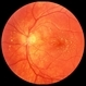 Cat Scratch Retinitis with Macular Lipid Resolving
