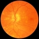 Birdshot Chorioretinopathy  FA with Optic Nerve Leakage Left Eye