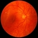Retinal Detachment with Macula Partially Detached