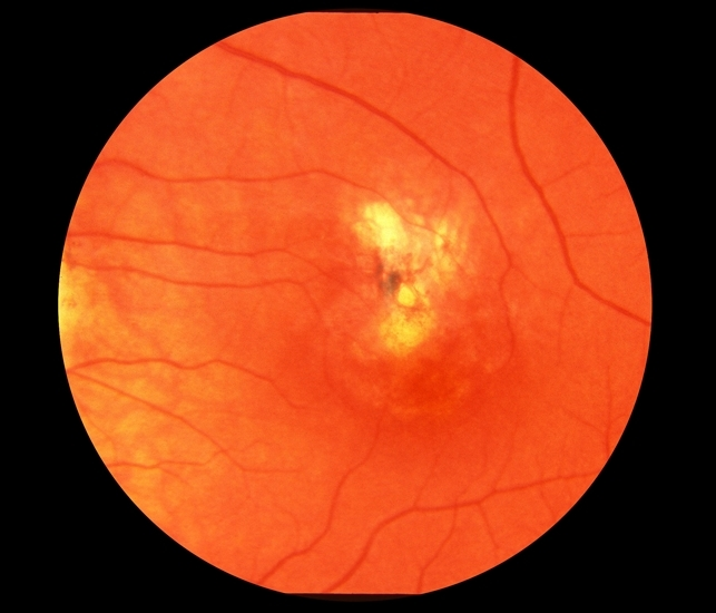Presumed Ocular Histoplasmosis Syndrome With Submacular CNV  Presumed Ocular Histoplasmosis