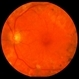 Proliferative Diabetic Retinopathy with Macular Traction