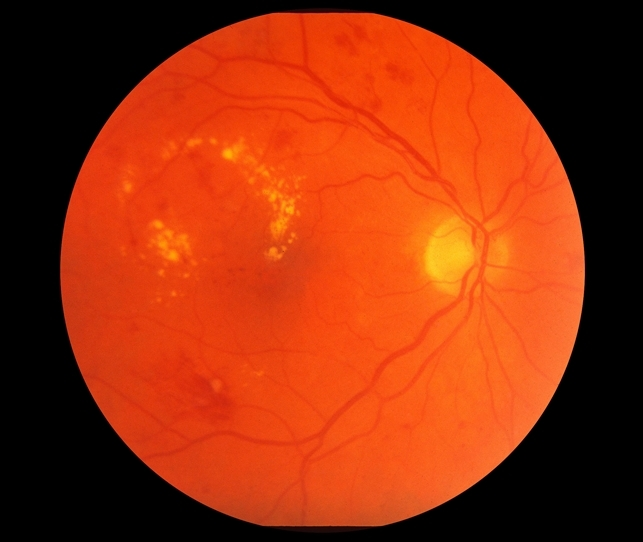 nonproliferative diabetic retinopathy with clinically