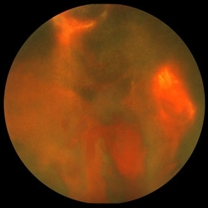 Proliferative Diabetic Retinopathy - Retina Image Bank