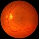 Retinoschisis/Retinal Detachment