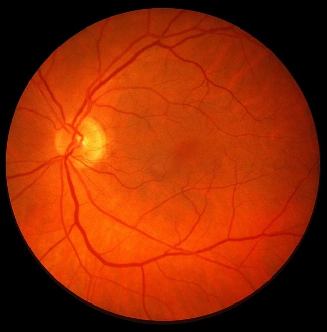retinoschisis  retinal detachment