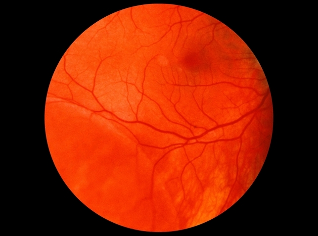 Retinoschisis - Retina Image Bank